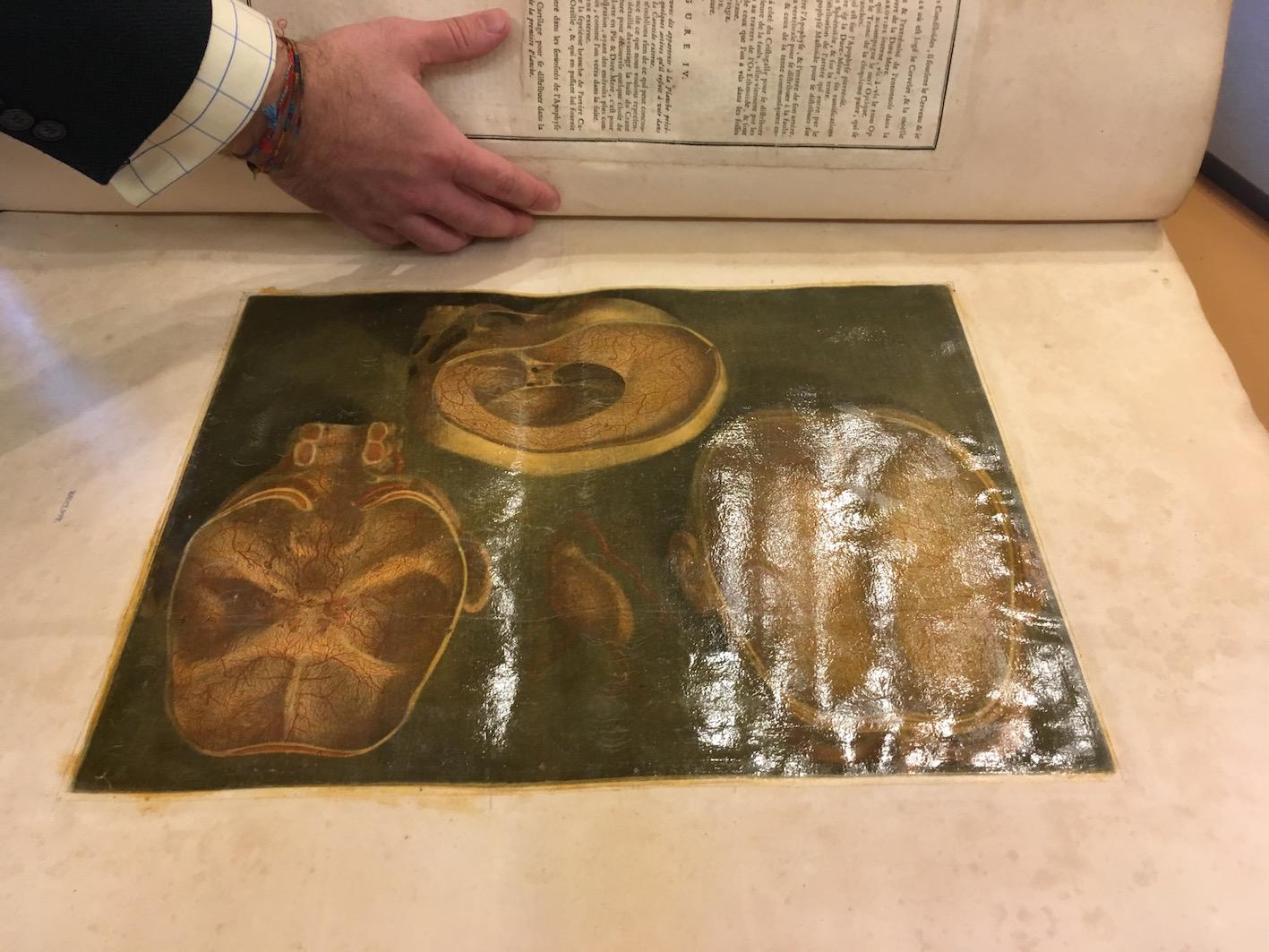 plate from G. Dagoty, <i>Anatomie de la tête: en tableaux imprimés</i> (Paris, 1978).